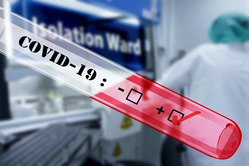 СЗО: Вчера регистрирани најголем број на новозаболени од коринавирус на дневно ниво од почетокот на пандемијата.